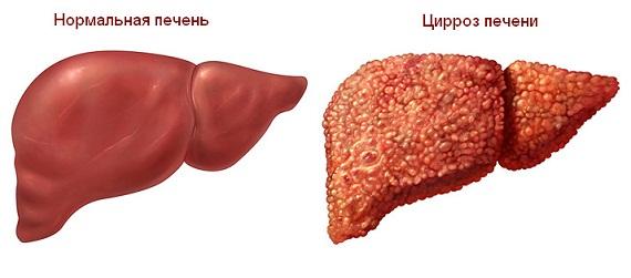 Что такое гипоэхогенный участок на печени
