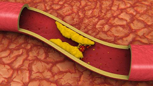 Что есть при высоком холестерине в крови