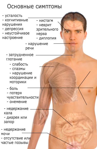 бляшки рассеянного склероза